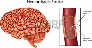 13699574-brain-stroke-illustration-a-illustration-of-hemorrhagic-stroke