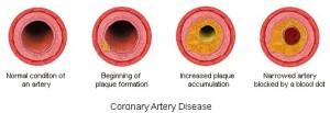 Coronay-Artery-Disease1